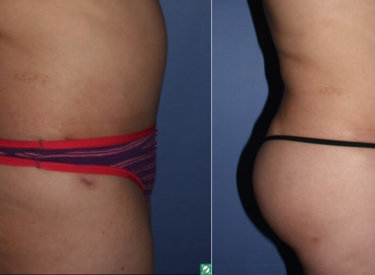 Brazilian Buttock Lift in Tucson | Maloney Plastic Surgery